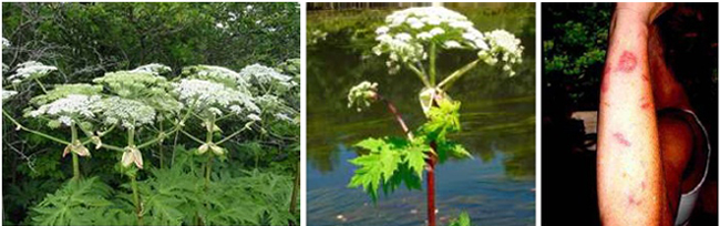 Giant Hogweed Plant and a person with Hogweed burns